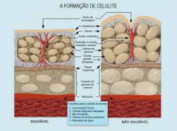 celulite e estrias formação
