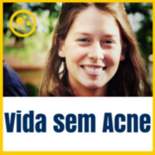 vida sem acne (2)